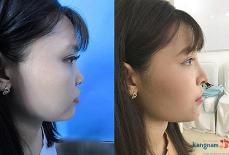 các dáng mũi đẹp 11