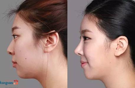có nên nâng mũi không phẫu thuật 4