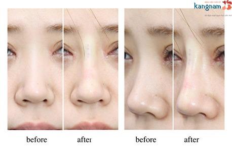có nên nâng mũi không phẫu thuật 7