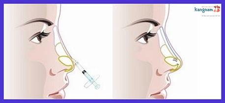 có nên nâng mũi không phẫu thuật 8