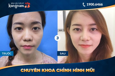 hình ảnh trước và sau nâng mũi 1