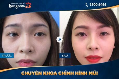 hình ảnh trước và sau nâng mũi 2