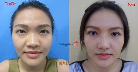 hình ảnh trước và sau nâng mũi 3