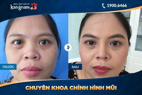 hình ảnh trước và sau nâng mũi 4