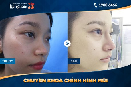 hình ảnh trước và sau nâng mũi 8