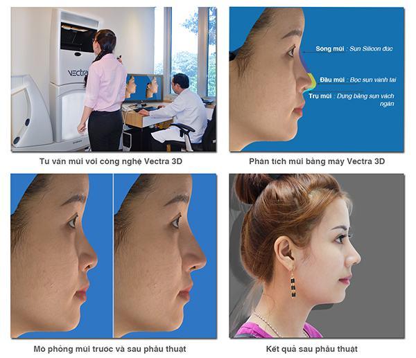 mũi thế nào là đẹp 3