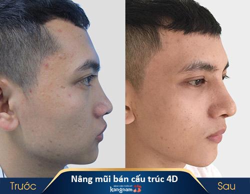 kết quả sau nâng mũi bán cấu trúc