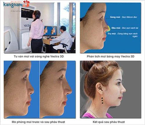 quy trình nâng mũi bán cấu trúc
