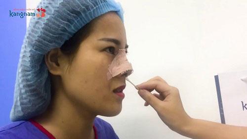 phẫu thuật thu gọn đầu mũi
