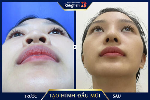 thu gọn đầu mũi kangnam